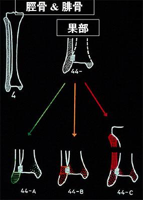 関節 骨折 果 足 外 右足関節外果骨折に対するアプローチの一考察