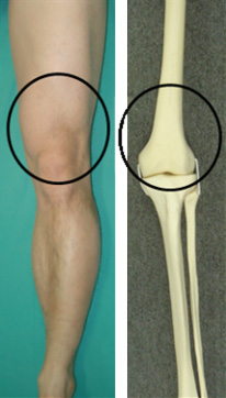 図1.黒丸に囲まれた部分が大腿骨遠位部