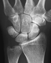 状 読み方 舟 骨 スポーツ選手の手首のケガ「舟状骨」骨折とその画像