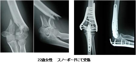 上 腕骨 顆 上 骨折